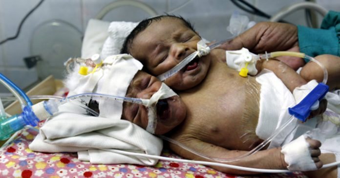 Abdul-Khaliq and Abdul-Rahim were born in Yemen in January. EPA